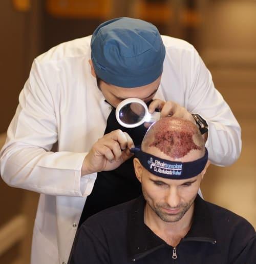 Die ersten Tage nach der Haarimplantation Nachsorge