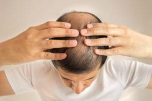 Ernährungsbedingter Haarausfall - Nahrungsmittel gegen Haarausfall