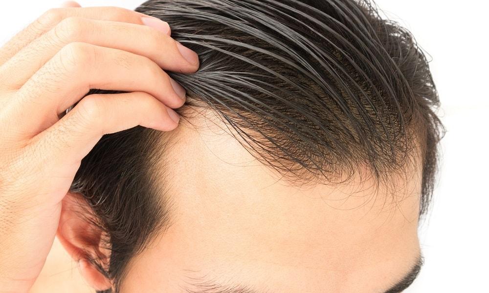 Haarersatz - Alopecia universalis