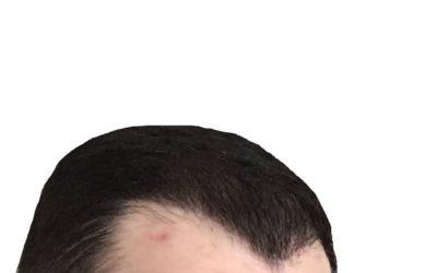 Haartransplantation: Pickel an der Tagesordnung?