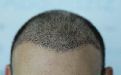 Haartransplantation: Haare fallen wieder aus. Ist das normal?
