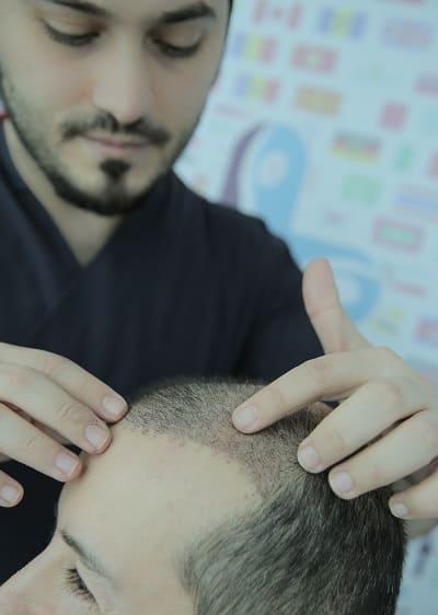 Haartransplantation Haare fallen wieder aus - Dr. Balwi untersucht die neu verpflanzten Haare