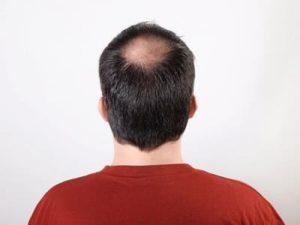 Mann mit kreisrundem Haarausfall im Tonsur