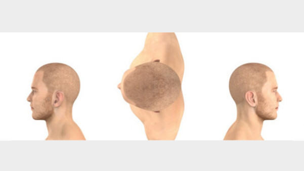 Haarausfall Behandlung Haarpigmentierung