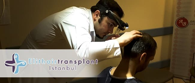 Haartransplantation mit Ice-Grafts