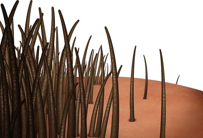 Spannungshaarausfall - Was tun gegen abgestorbene Haarwurzeln