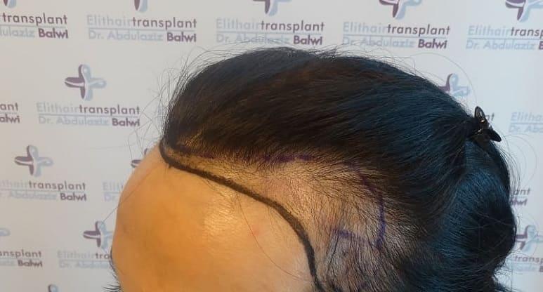Prophylaxe von Haarausfall - Einseitiger Haarausfall Elithairtransplant