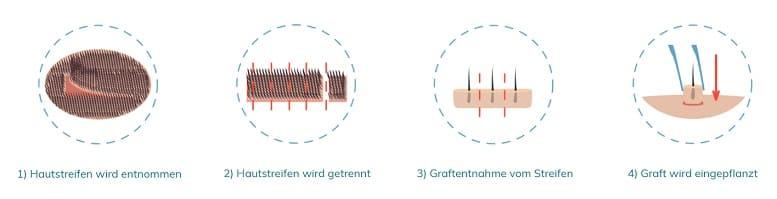 Streifentechnik Haartransplantation Ablauf