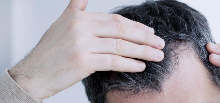 Glatzen Simulator - Geheimratsecken beim Mann