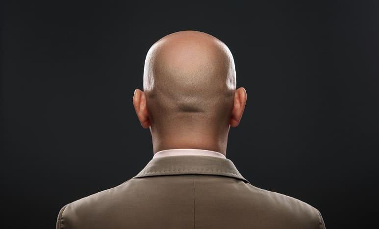 Eine Glatze ist sexy – Unsinn oder Wahrheit?