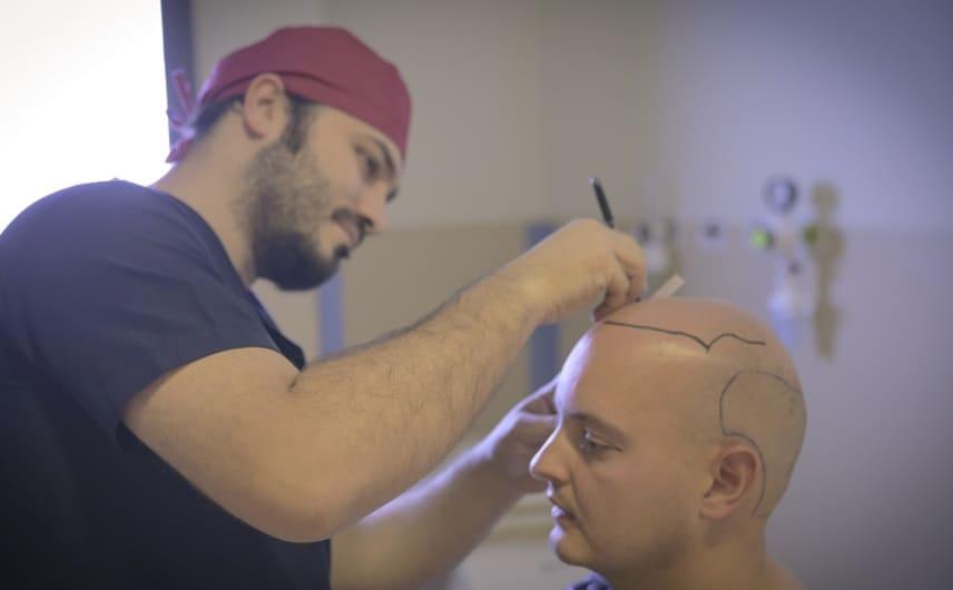 Glazen Simulator - Dr Balwi zeichnet Haarlinie vor Behandlung
