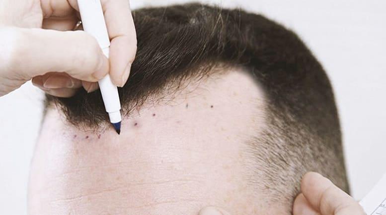 Streifentechnik Haartransplantation Haarverpflanzung bei Geheimratsecken