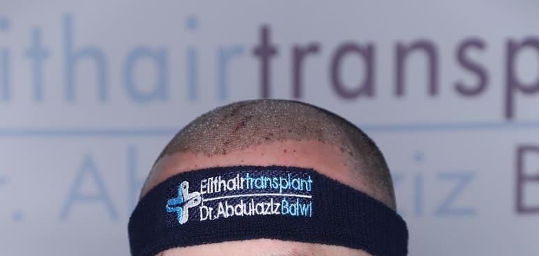 Haartransplantation ist eine Art von Haaransatz
