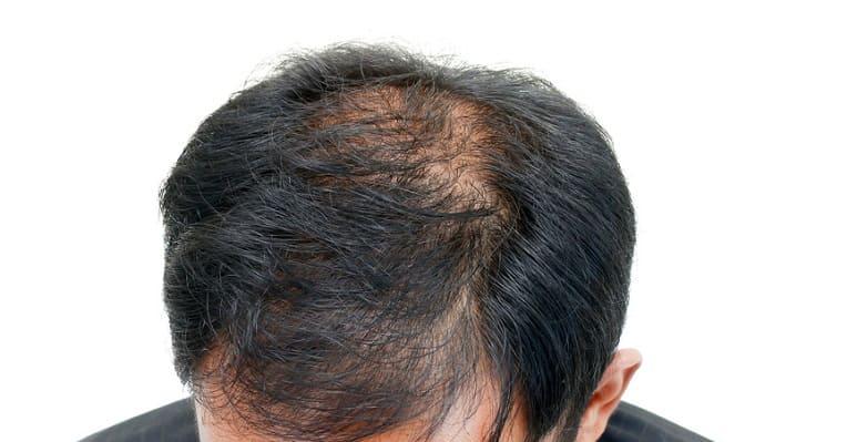 Haarausfall durch Krankheiten - Haarverlust aus dem oberen Kopf