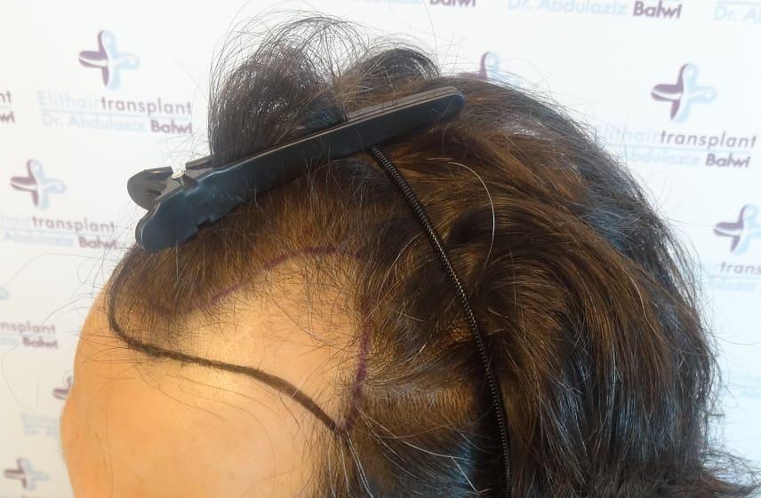 Haarausfall durch Sauerstoffmangel - Vor Haarverpflanzung bei Geheimratsecken natürliche Haarlinie angezeichnet