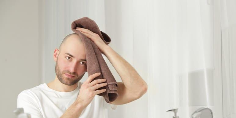 Männer mit glatze junge Glatze ist