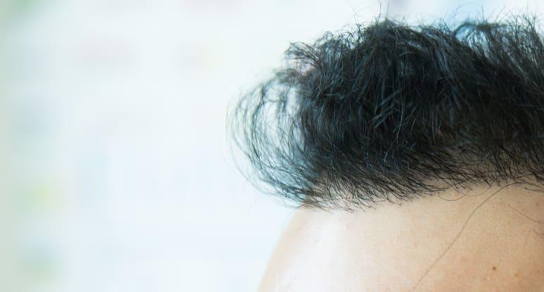 Haaransatz beim Mann - Natürliche Haarlinie nach Haartransplantation