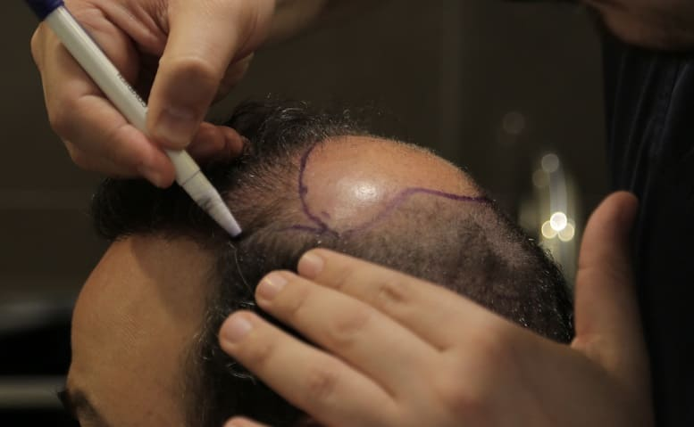 Haartransplantation ist eine dauerhafte Lösung bei Haarkranz
