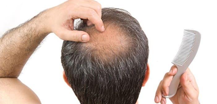 Kopfhauterkrankungen mit Haarausfall von Tonsurbereich
