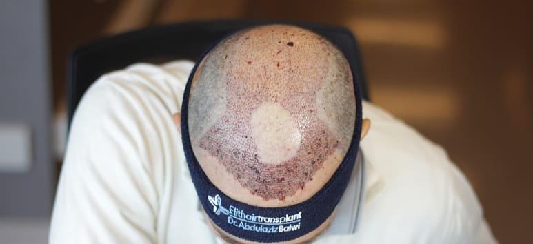 Haarausfall nach Strahlentherapie - Haarverpflanzung bei Elithairtransplant