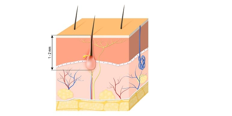 Haarausfall mit Wurzel - Kleine Haarwurzel