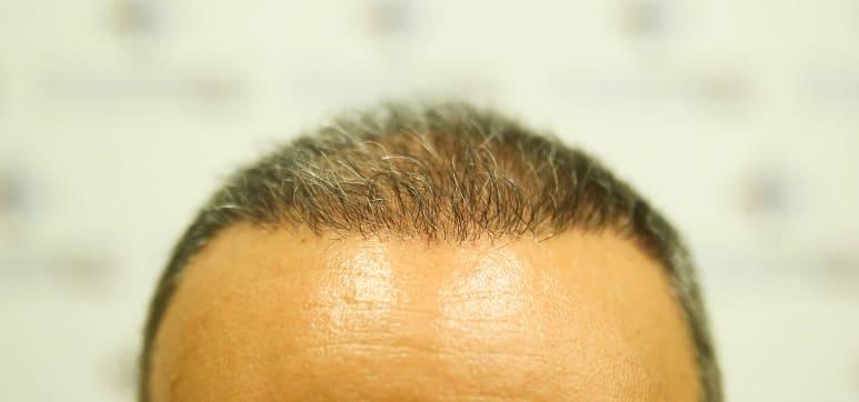 Juckende Kopf nach Haartransplantation kann auftreten