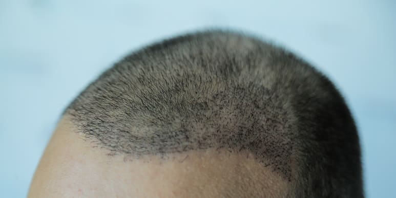 Juckende Kopf - Kopfhaut nach Haartransplantation