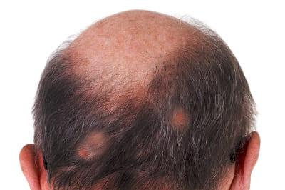 Kopfhauterkrankung mit Haarausfall Lichen Ruber