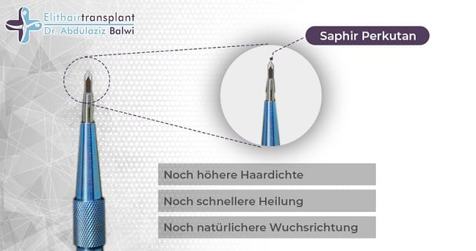 Saphir FUE Methode