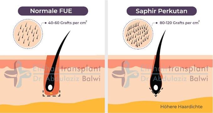 Saphir Perkutan Haartransplantation
