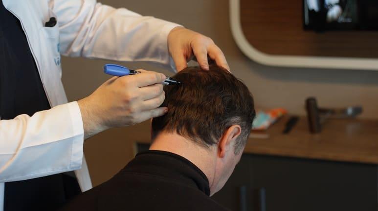 Regeneration der Haare - Arzt prüft Spenderbereich