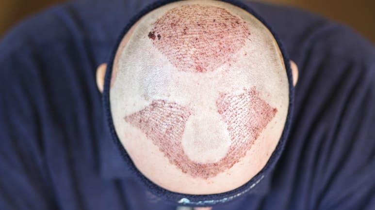 Haarausfall durch Sauerstoffmangel - Haartransplantation im Tonsur und Geheimratsecken Elithairtransplant