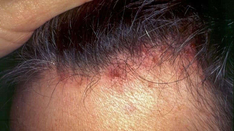Folliculitis decalvans Therapie - Pickel auf Kopfhaut