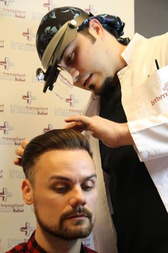 Nach Haartransplantation schnelle Heilung durch PRP Behandlung