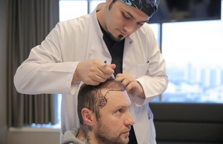 Begriffserklärung Geheimratsecken - Dr. Balwi zeichnet die natürliche Haarlinie