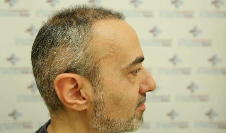 Geheimratsecken bekämpfen - Haarausfall an Schläfen