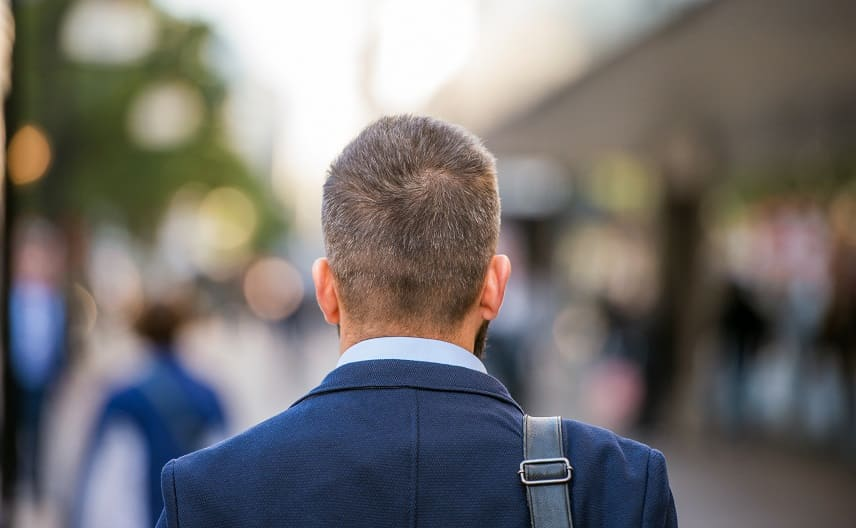 Haartransplantation ohne Eigenhaar