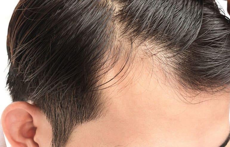 Haarverlust am Schläfen