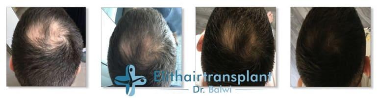 Vor der Behandlung und nach der Behandlung