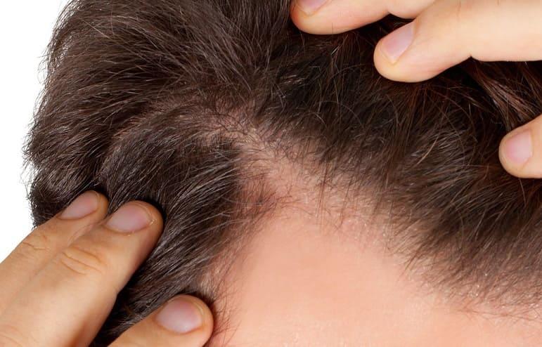 schmerzenden Haarwurzeln beim Mann
