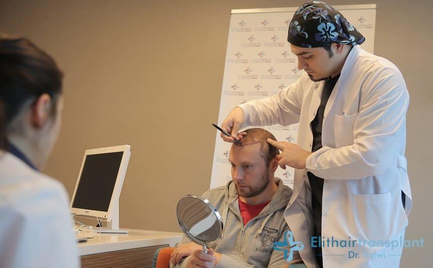 Gründe für eine Haartransplantation - Dr. Balwi zeichtnet die Haarlinie