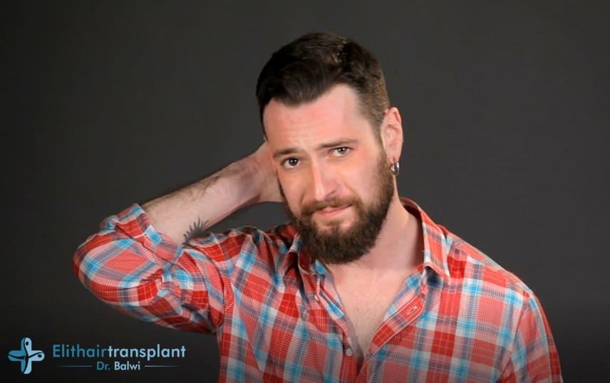 Junge Mann leidet Kopfhaut Pilz mit Haarverlust