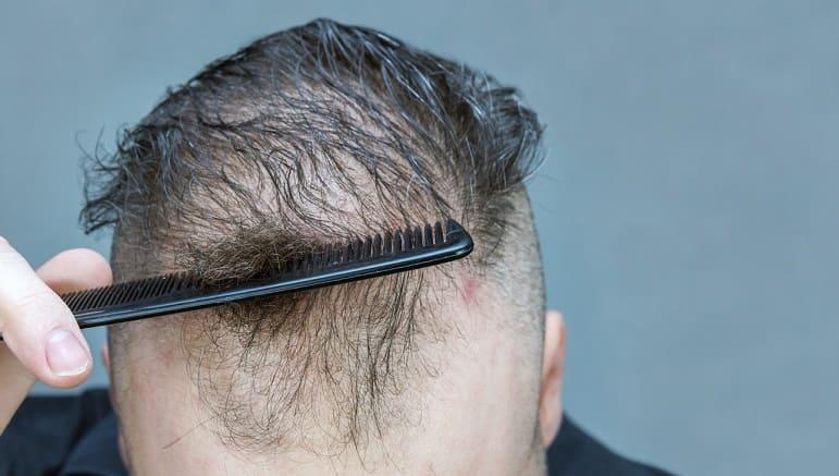 Lichtes Haar - Kopfbehaarung kontinuierlich weniger