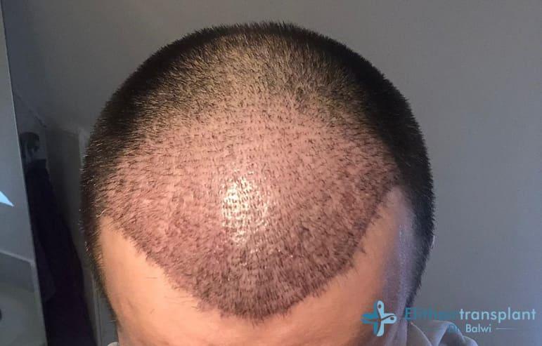 Nach Haartransplantation bei genetischem Haarausfall