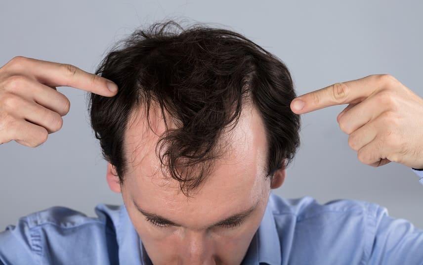 Thymuskin gegen Haarausfall - Junge Mann zeigt sein Geheimratsecken