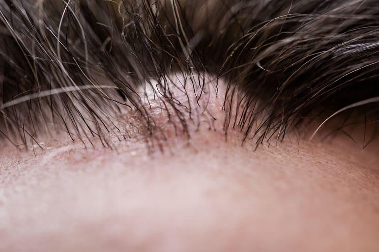 Nahaufnahme von Schwellungen auf der Kopfhaut