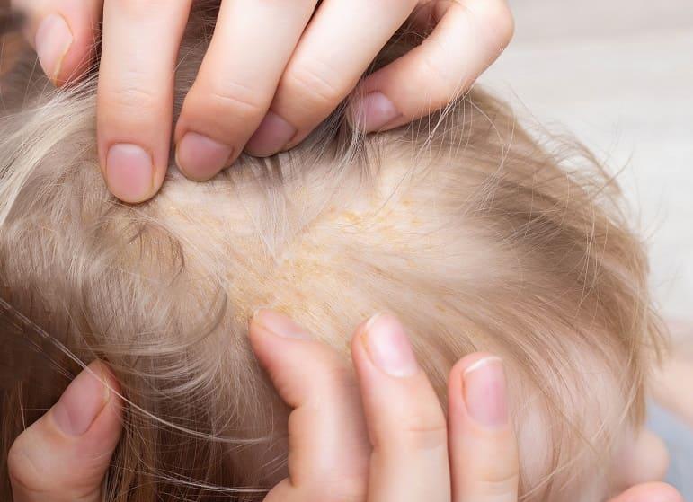 Arzt kämmt die Haare eines Patienten der unter Schuppenflechte leidet