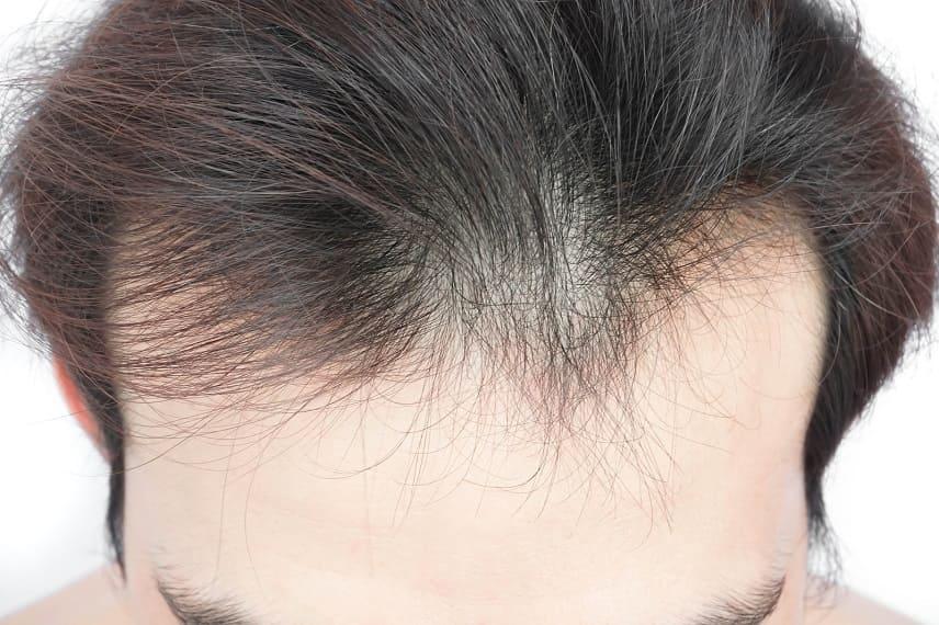 Haarausfall durch verstopfte Poren