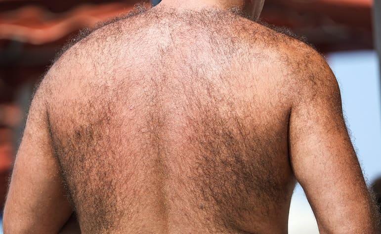 Mann mit stark behaarten Rücken