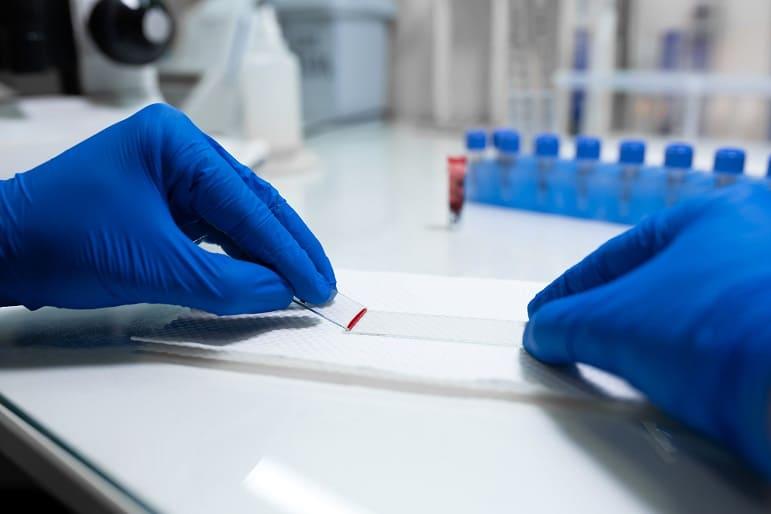 Arzt bereitet Blutprobe zur Untersuchung unter dem Mikroskop vor